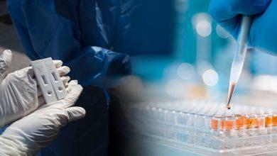 Photo of Σε ποια νοσοκομεία μπορείτε να κάνετε δωρεάν διαγνωστικό τεστ κορωνοϊού